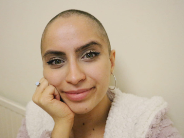 Meet Simona, diagnosed with Hodgkin's Lymphoma, aged 22